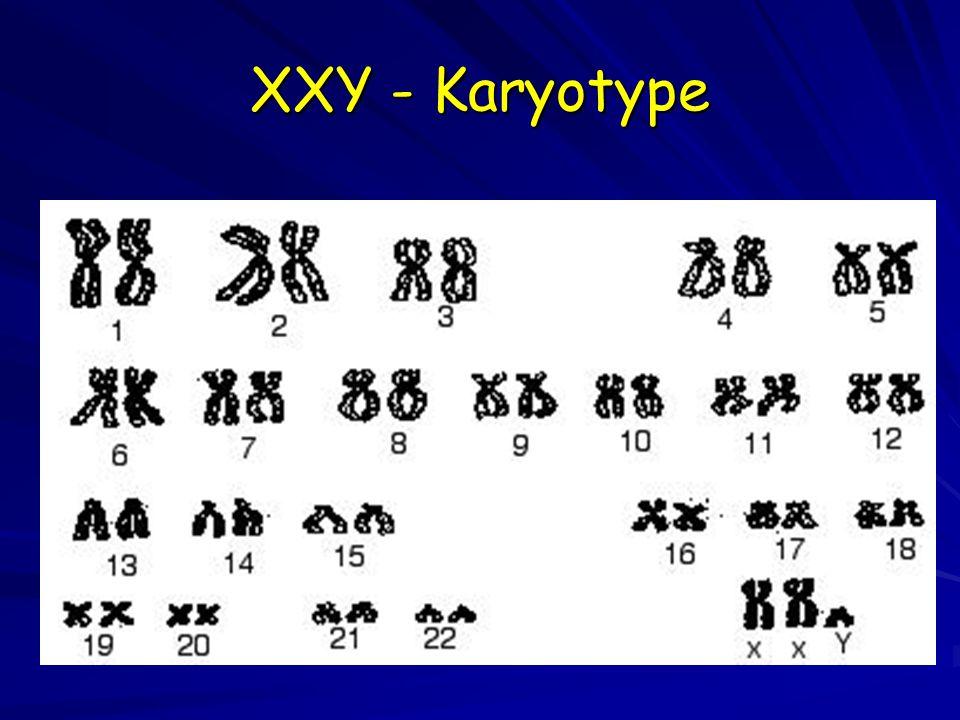 XXY - Karyotype