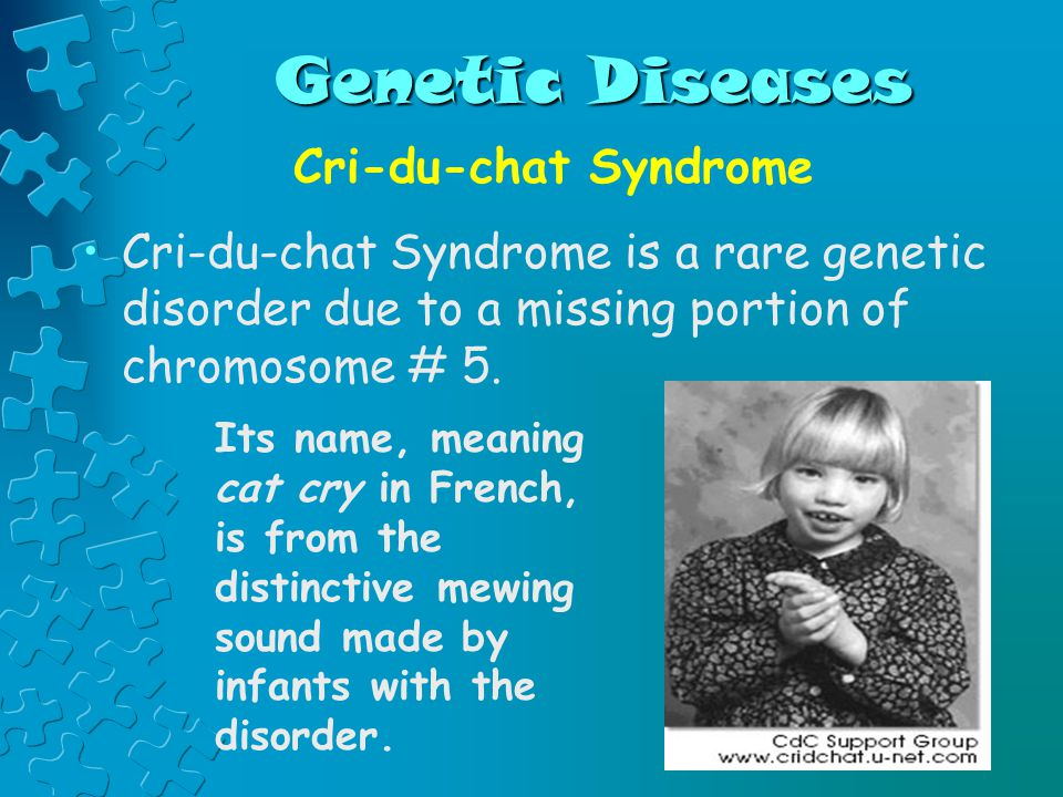 Genetic Diseases Cri-du-chat Syndrome Cri-du-chat Syndrome is a rare genetic disorder due to a missing portion of chromosome # 5. Its name, meaning ca