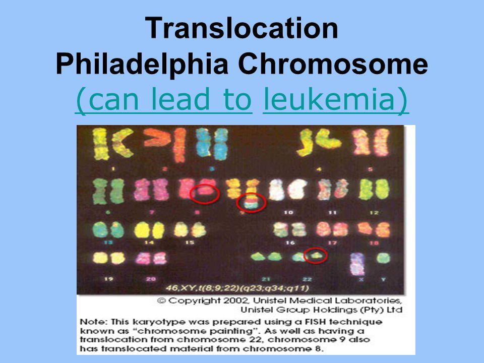 Translocation Philadelphia Chromosome (can lead to leukemia) (can lead toleukemia)