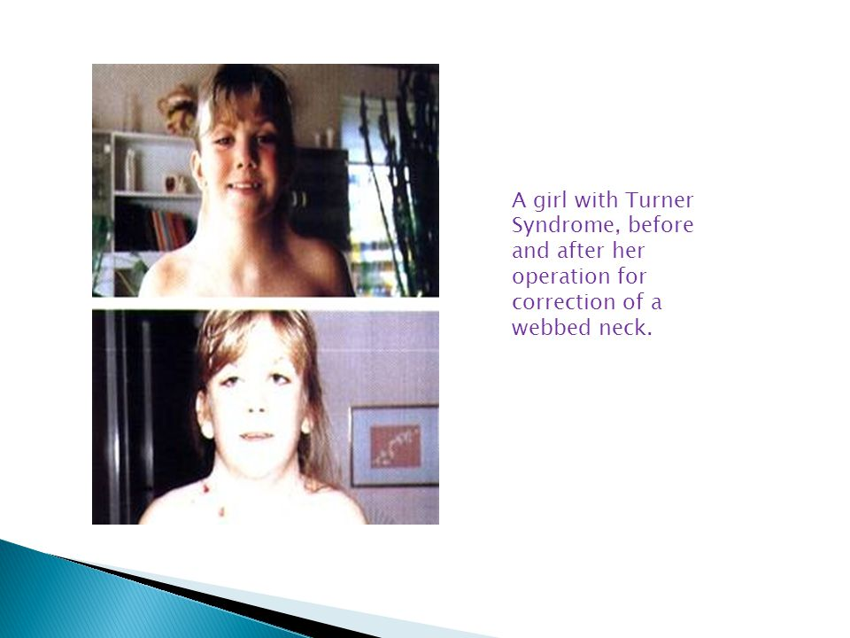 A girl with Turner Syndrome, before and after her operation for correction of a webbed neck.