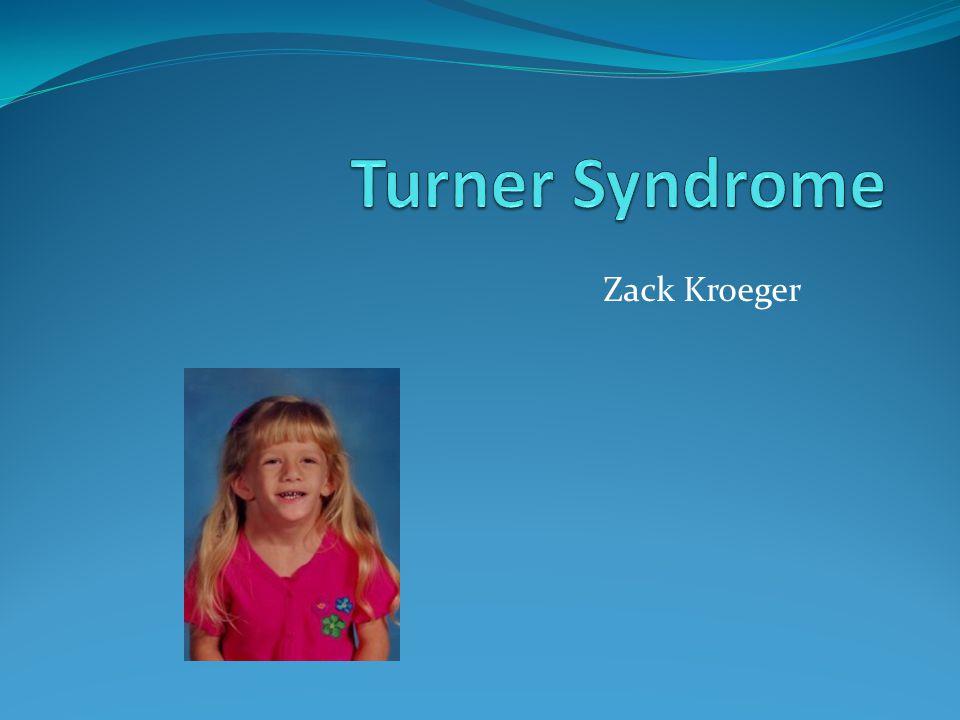 Alternate names TS Monosomy X Ullrich- Turner Syndrome 45,X