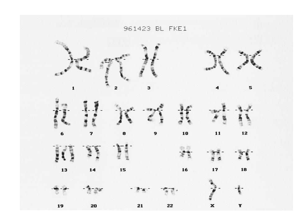 How can chromosomes break.