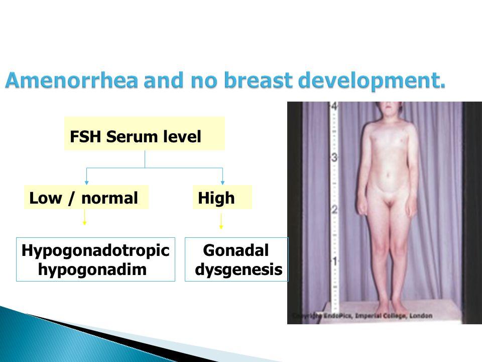 FSH Serum level Low / normalHigh Hypogonadotropic hypogonadim Gonadal dysgenesis