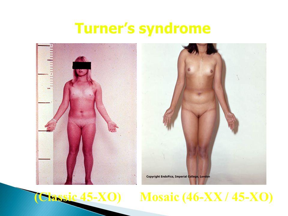 Mosaic (46-XX / 45-XO)(Classic 45-XO) Turner's syndrome