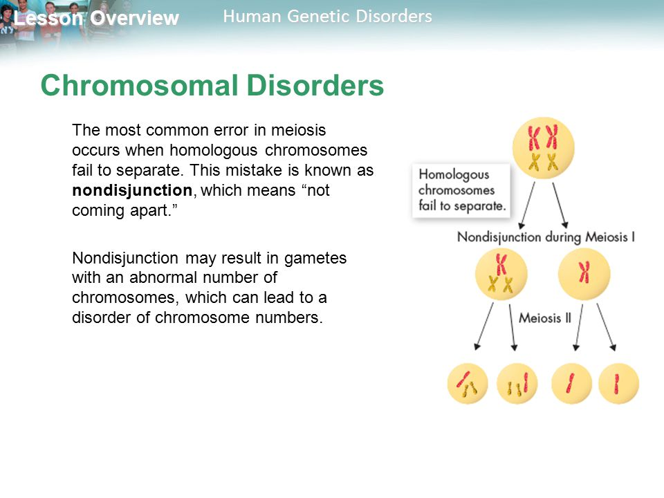 Lesson Overview Lesson Overview Human Genetic Disorders Chromosomal Disorders The most common error in meiosis occurs when homologous chromosomes fail