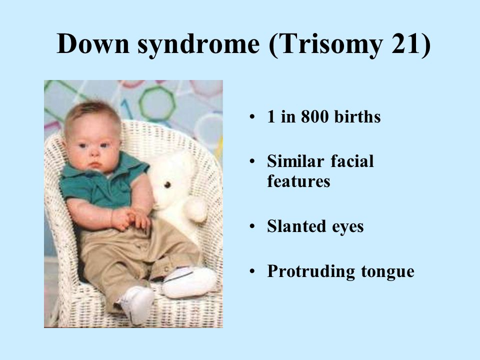 Down syndrome (Trisomy 21) 1 in 800 births Similar facial features Slanted eyes Protruding tongue