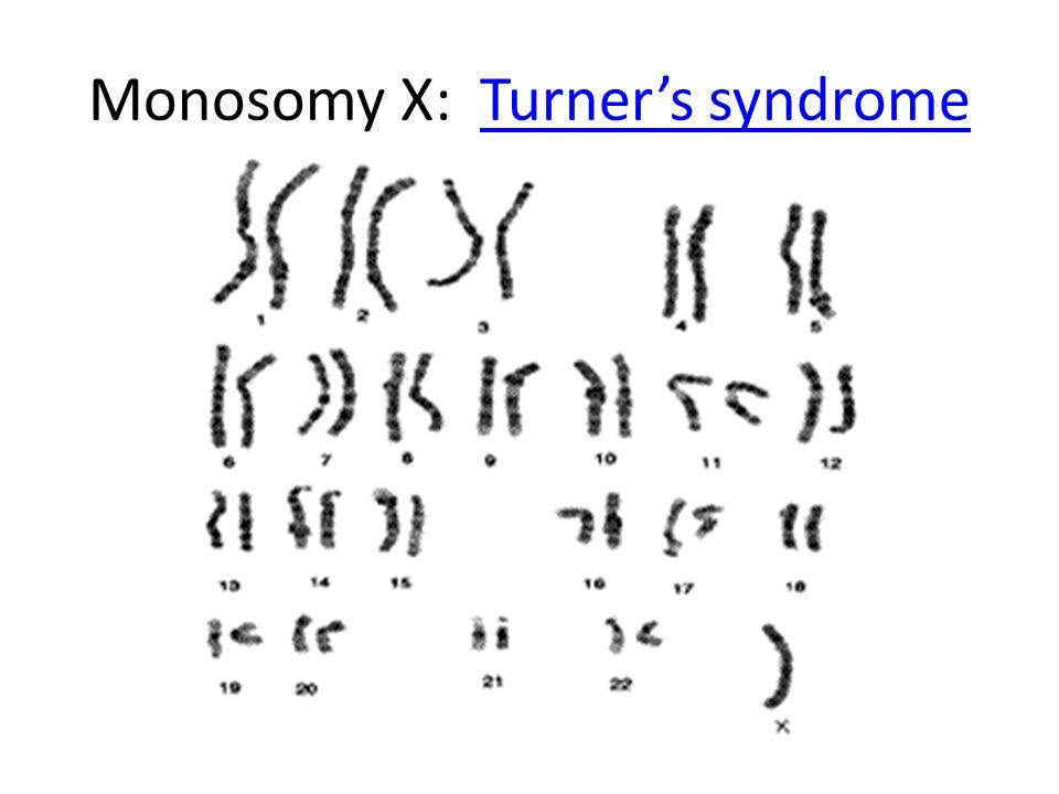 Monosomy X: Turner's syndromeTurner's syndrome