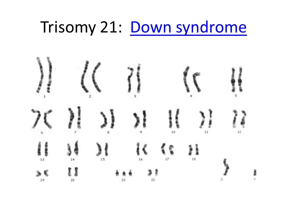 Trisomy 21: Down syndromeDown syndrome