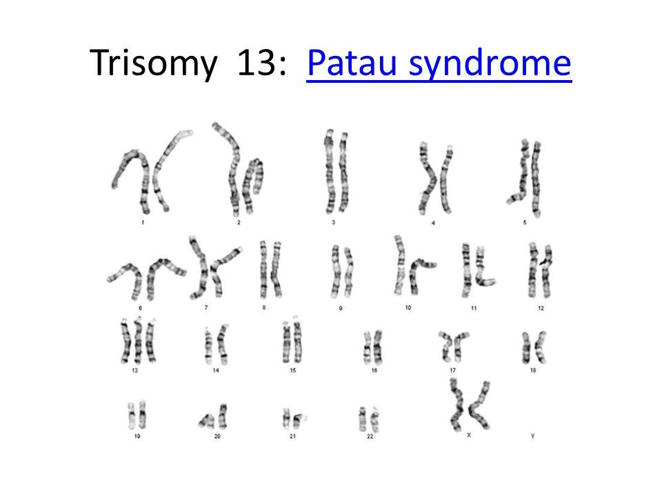 Trisomy 13: Patau syndromePatau syndrome