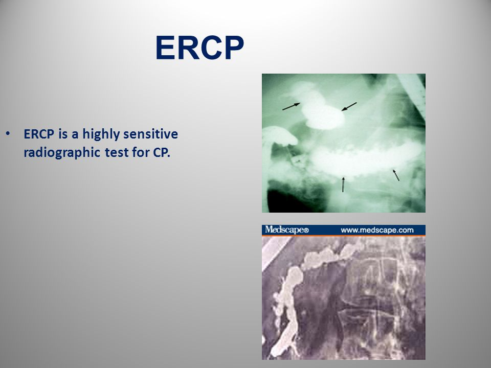 ERCP 26 ERCP is a highly sensitive radiographic test for CP.