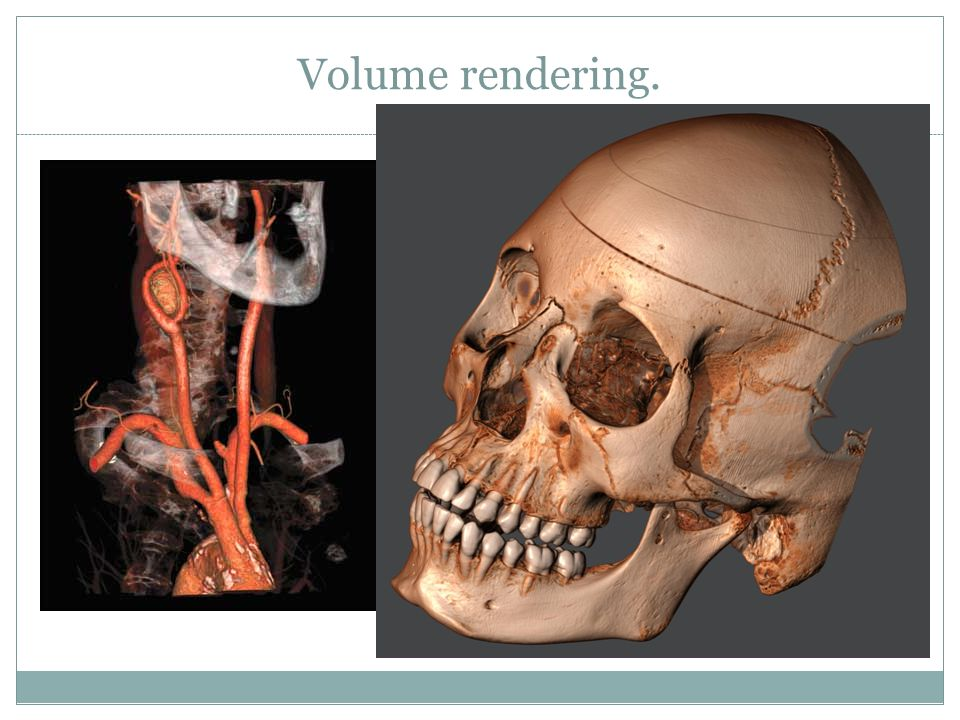 Volume rendering.