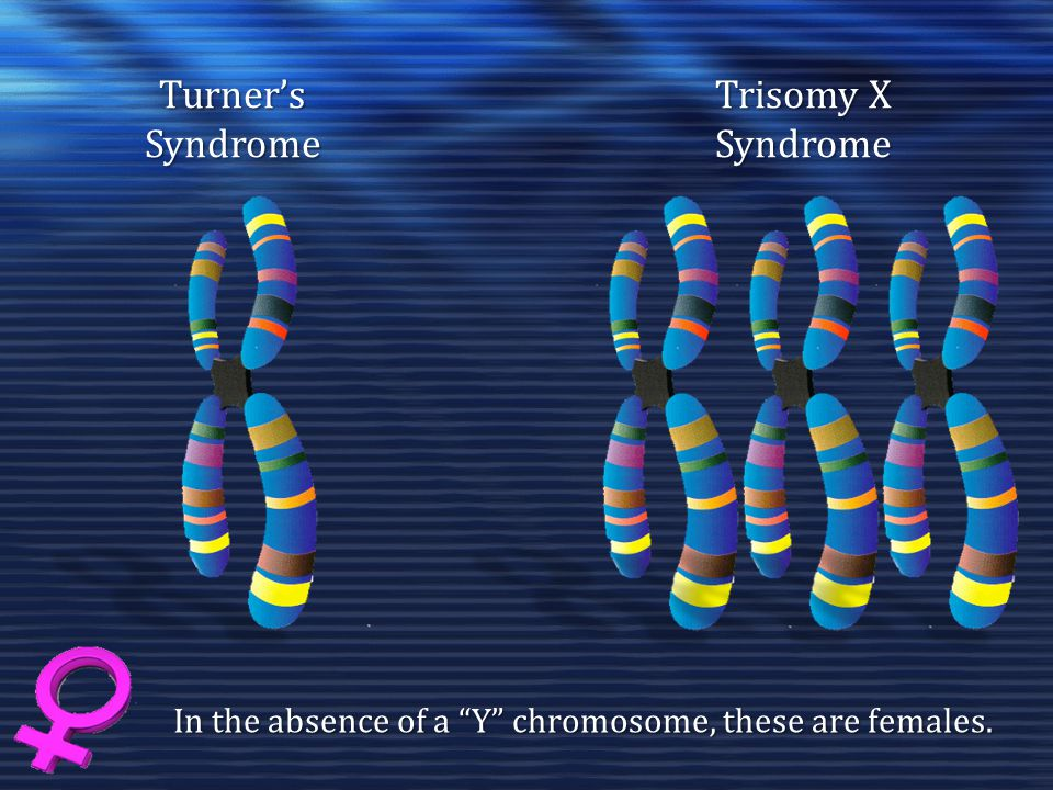 """Trisomy X SyndromeTurner'sSyndrome In the absence of a """"Y"""" chromosome, these are females."""
