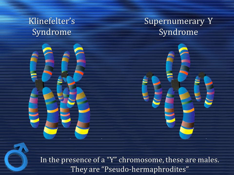 Supernumerary Y Syndrome Klinefelter's Syndrome In the presence of a Y chromosome, these are males.