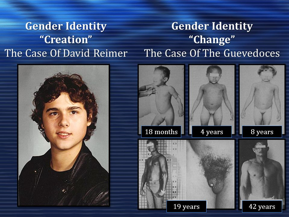 Gender Identity Creation The Case Of David Reimer Gender Identity Change The Case Of The Guevedoces 18 months 4 years 8 years 19 years 42 years