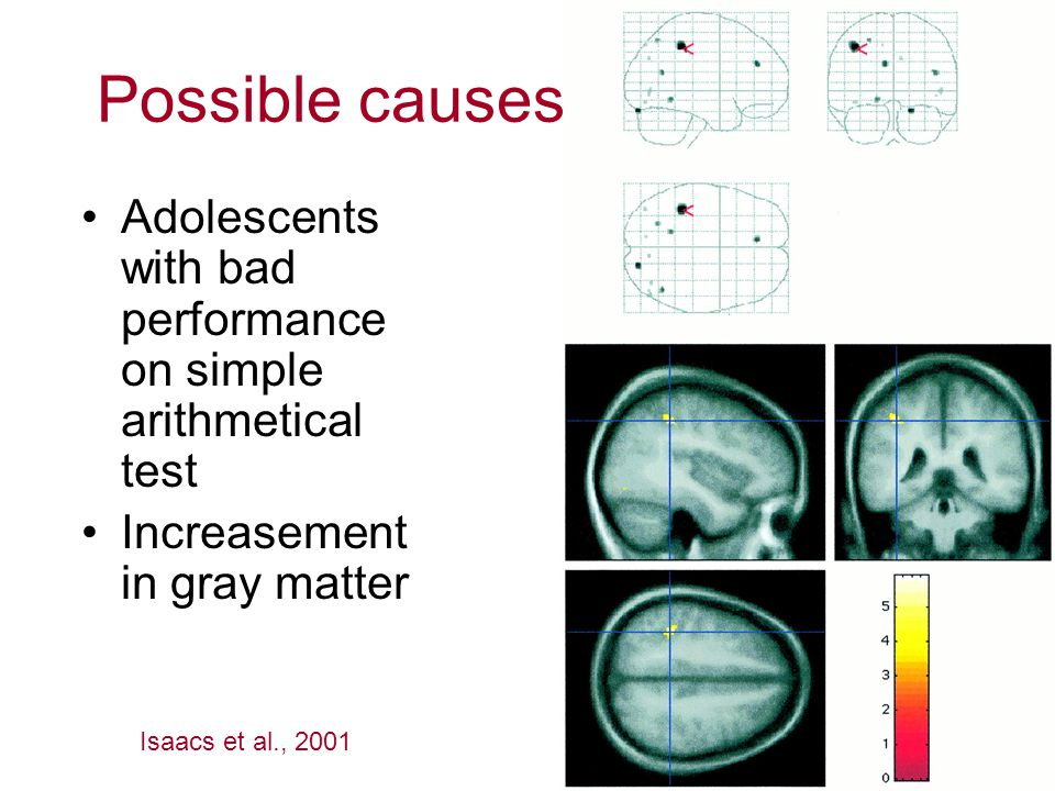Adolescents with bad performance on simple arithmetical test Increasement in gray matter Isaacs et al., 2001 Possible causes