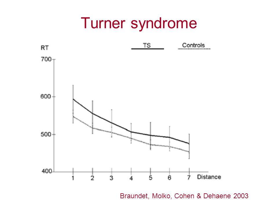 Turner syndrome Braundet, Molko, Cohen & Dehaene 2003