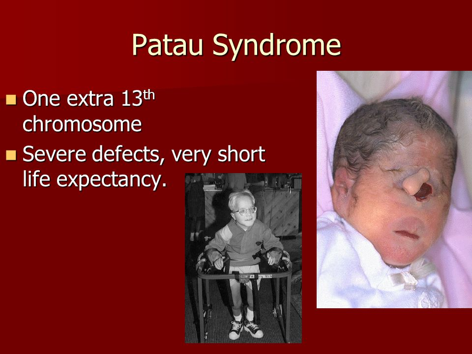Patau Syndrome One extra 13 th chromosome One extra 13 th chromosome Severe defects, very short life expectancy. Severe defects, very short life expec
