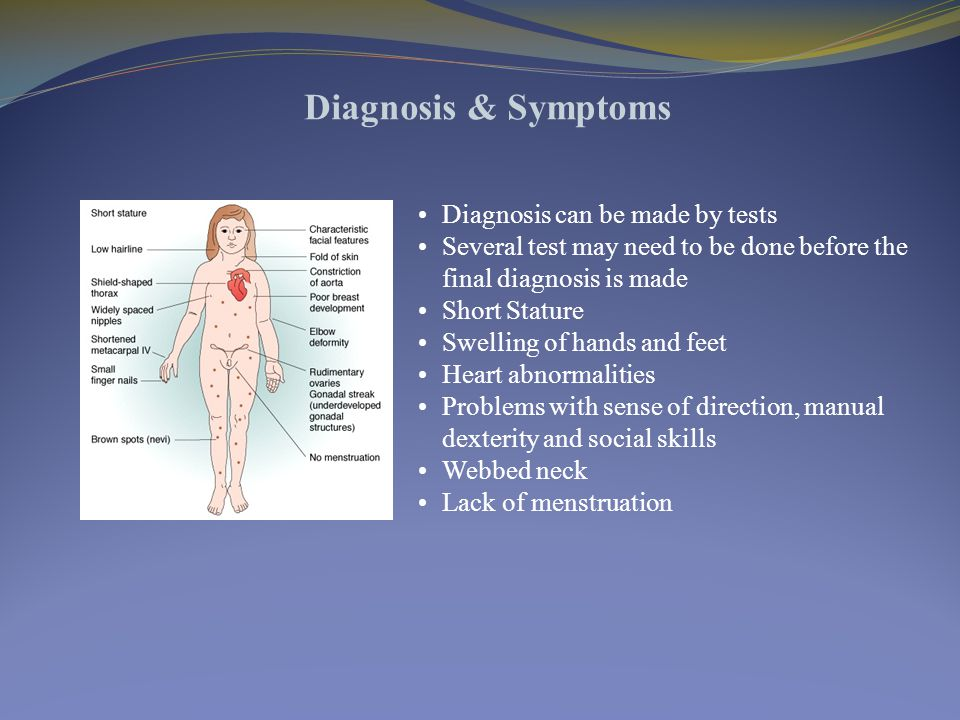 Diagnosis & Symptoms Diagnosis can be made by tests Several test may need to be done before the final diagnosis is made Short Stature Swelling of hands and feet Heart abnormalities Problems with sense of direction, manual dexterity and social skills Webbed neck Lack of menstruation