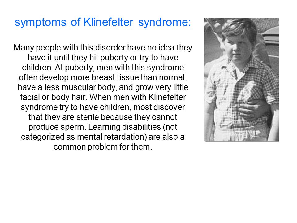 symptoms of Klinefelter syndrome: Many people with this disorder have no idea they have it until they hit puberty or try to have children. At puberty,