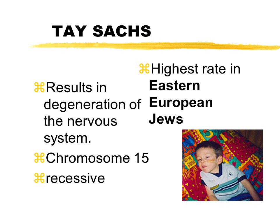 TAY SACHS zResults in degeneration of the nervous system.