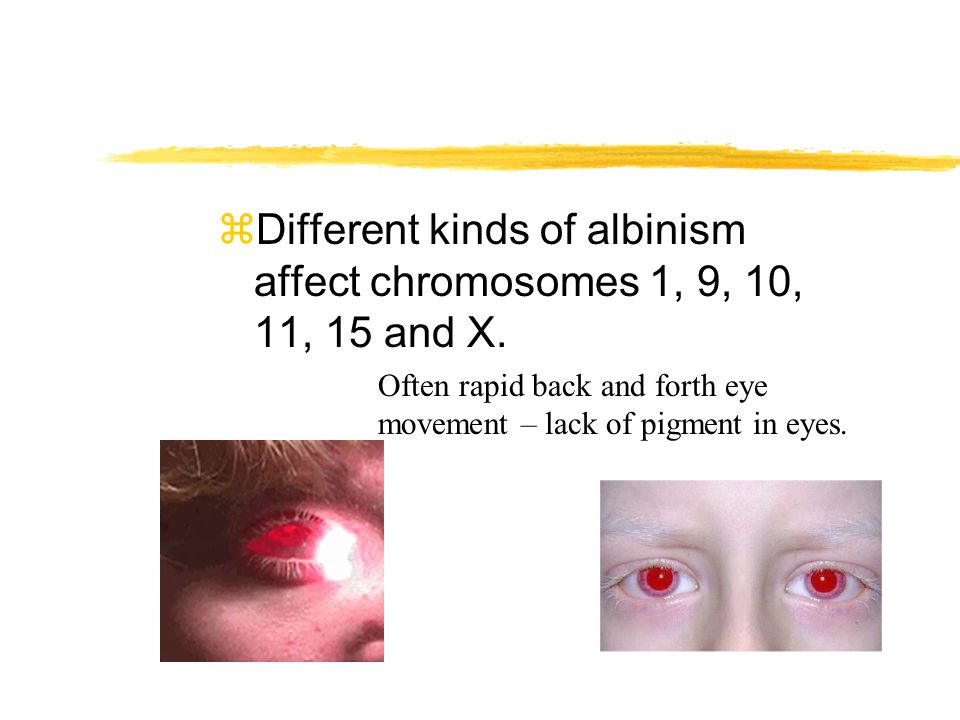 zDifferent kinds of albinism affect chromosomes 1, 9, 10, 11, 15 and X. Often rapid back and forth eye movement – lack of pigment in eyes.