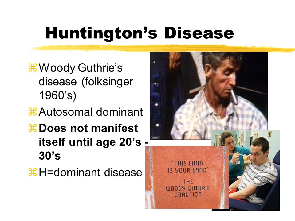 Huntington's Disease zWoody Guthrie's disease (folksinger 1960's) zAutosomal dominant zDoes not manifest itself until age 20's - 30's zH=dominant disease