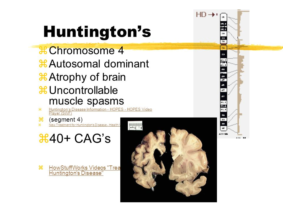 Huntington's zChromosome 4 zAutosomal dominant zAtrophy of brain zUncontrollable muscle spasms zHuntington s Disease Information - HOPES - HOPES Video Player (SWF)Huntington s Disease Information - HOPES - HOPES Video Player (SWF) z(segment 4) zNew Treatment for Huntington s Disease - Health Videos – redOrbitNew Treatment for Huntington s Disease - Health Videos – redOrbit z40+ CAG's zHowStuffWorks Videos Treating Huntington s Disease HowStuffWorks Videos Treating Huntington s Disease