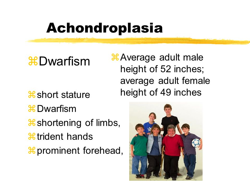 Achondroplasia zDwarfism zshort stature zDwarfism zshortening of limbs, ztrident hands zprominent forehead, zAverage adult male height of 52 inches; a