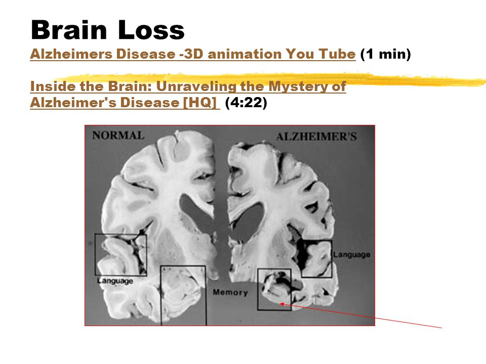 Brain Loss Alzheimers Disease -3D animation You Tube (1 min) Inside the Brain: Unraveling the Mystery of Alzheimer's Disease [HQ] (4:22) Alzheimers Di
