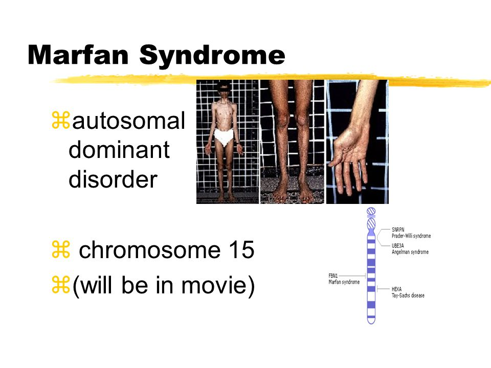 Marfan Syndrome zautosomal dominant disorder z chromosome 15 z(will be in movie)