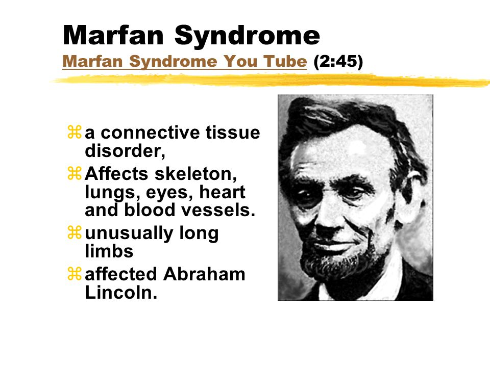 Marfan Syndrome Marfan Syndrome You Tube (2:45) Marfan Syndrome You Tube za connective tissue disorder, zAffects skeleton, lungs, eyes, heart and bloo