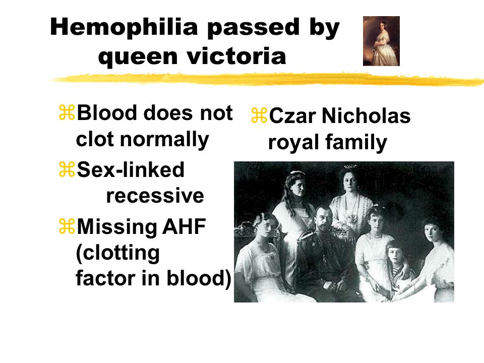 Hemophilia passed by queen victoria zBlood does not clot normally zSex-linked recessive zMissing AHF (clotting factor in blood) zCzar Nicholas royal f