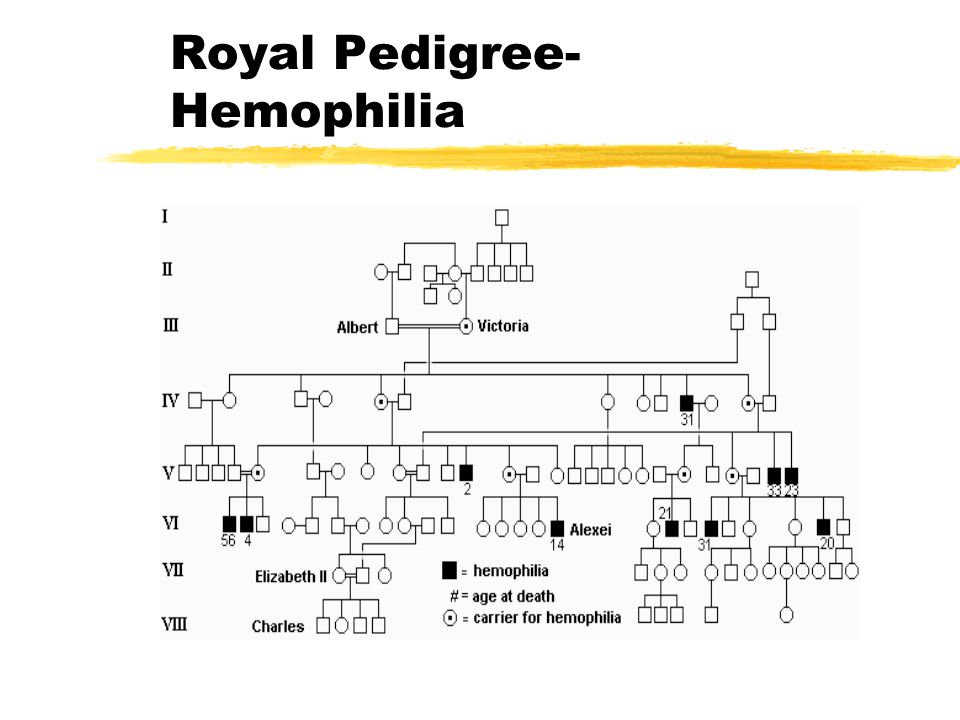 Royal Pedigree- Hemophilia