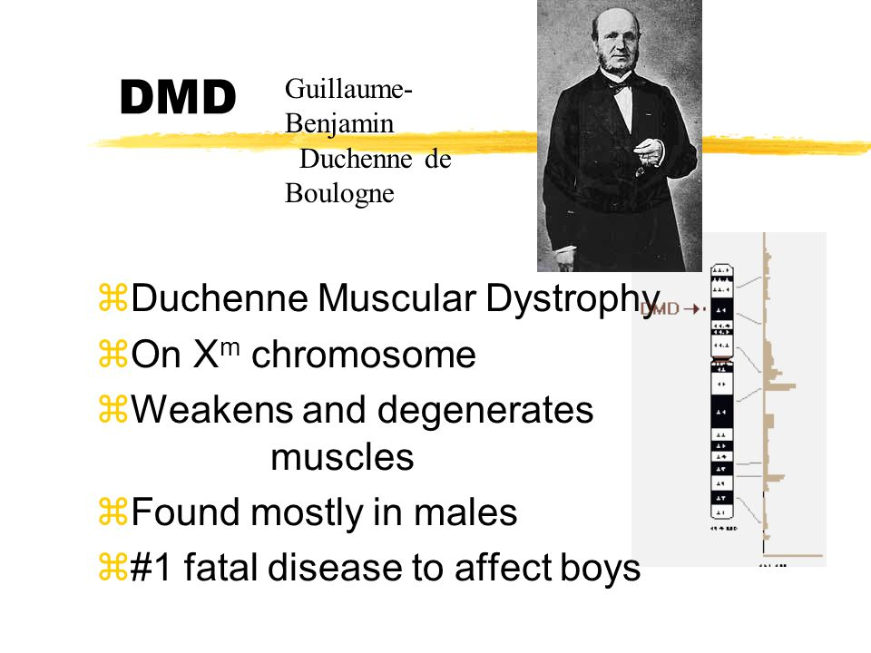 DMD zDuchenne Muscular Dystrophy zOn X m chromosome zWeakens and degenerates muscles zFound mostly in males z#1 fatal disease to affect boys Guillaume- Benjamin Duchenne de Boulogne
