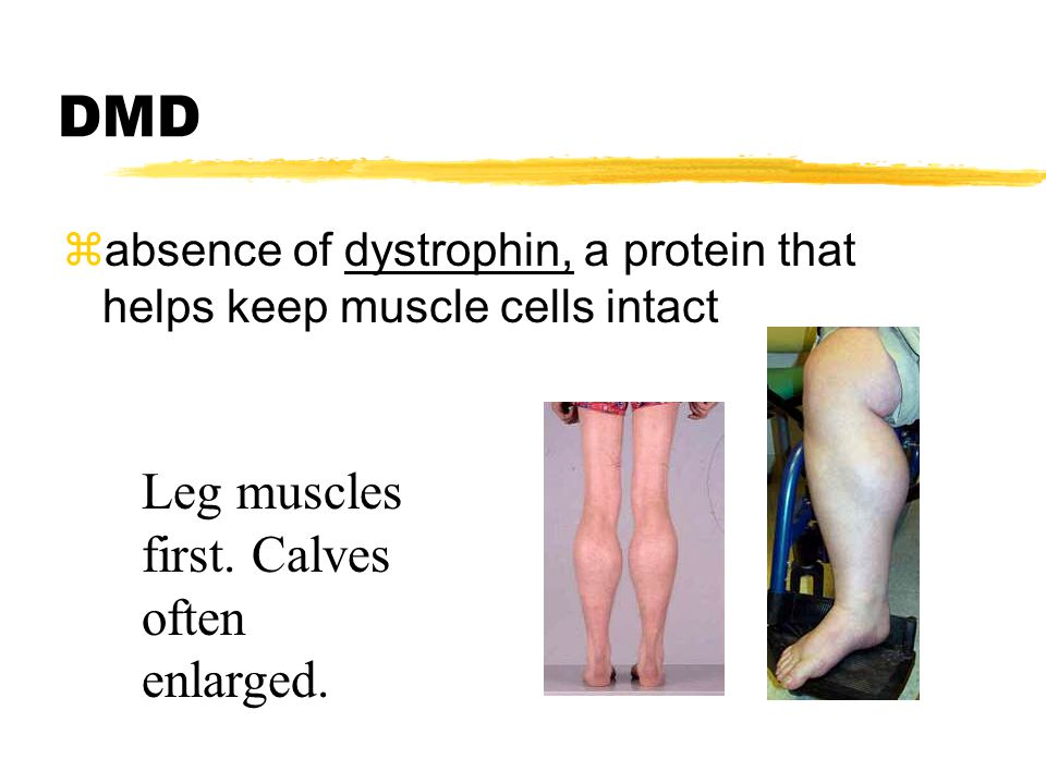 DMD zabsence of dystrophin, a protein that helps keep muscle cells intact Leg muscles first. Calves often enlarged.
