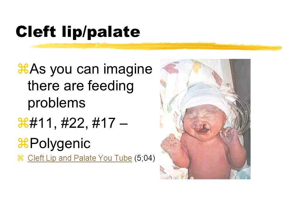 Cleft lip/palate zAs you can imagine there are feeding problems z#11, #22, #17 – zPolygenic zCleft Lip and Palate You Tube (5;04)Cleft Lip and Palate You Tube