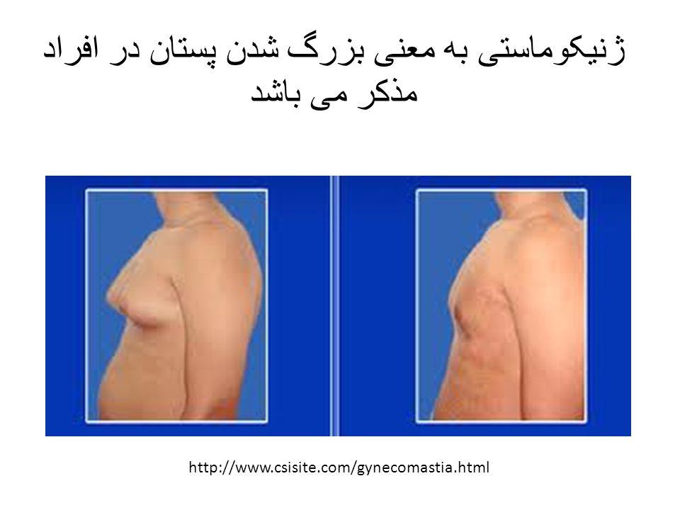 ژنیکوماستی به معنی بزرگ شدن پستان در افراد مذکر می باشد http://www.csisite.com/gynecomastia.html