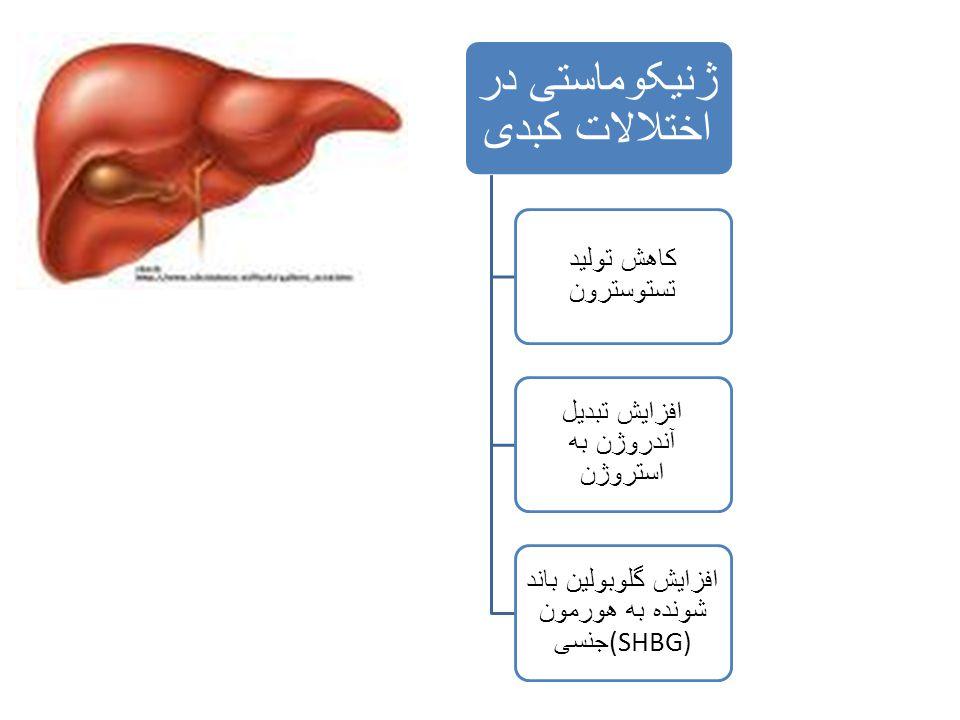 ژنیکوماستی در اختلالات کبدی کاهش تولید تستوسترون افزایش تبدیل آندروژن به استروژن افزایش گلوبولین باند شونده به هورمون جنسی (SHBG)