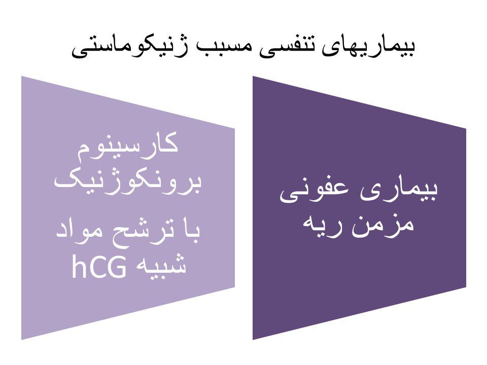 بیماریهای تنفسی مسبب ژنیکوماستی کارسینوم برونکوژنیک با ترشح مواد hCG شبیه بیماری عفونی مزمن ریه