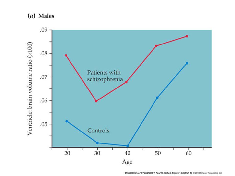 Glutamate hypothesis Seizures!.