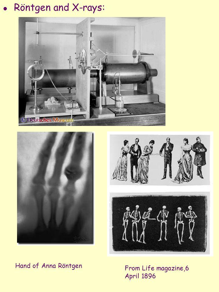 l Röntgen and X-rays: From Life magazine,6 April 1896 Hand of Anna Röntgen