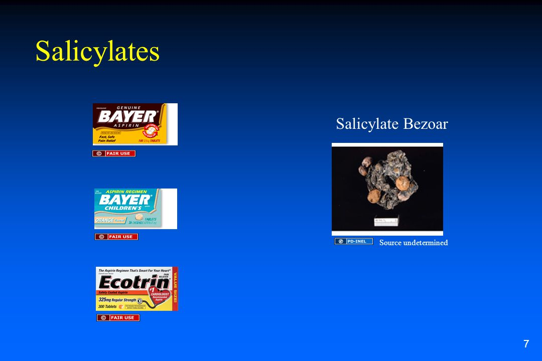 Salicylates Salicylate Bezoar 7 Source undetermined