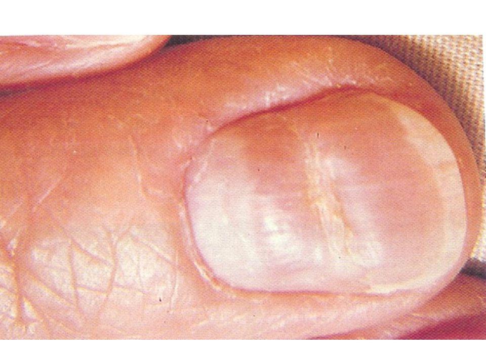  White hue at base of nails:  Liver disease: chronic hepatitis or cirrhosis.