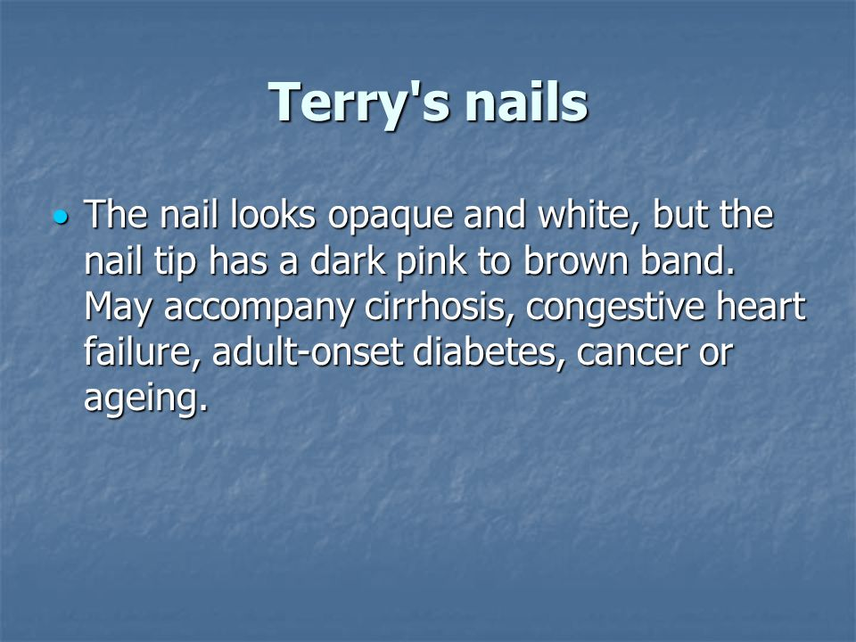 Terry s nails  The nail looks opaque and white, but the nail tip has a dark pink to brown band.