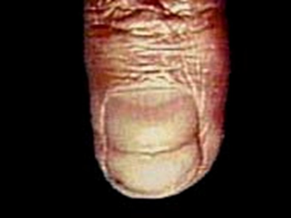 Paronychia (felon) Inflammation of the nail folds, which appear red, swollen and tender.