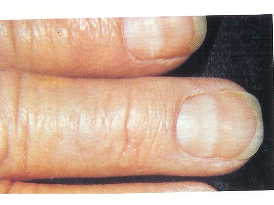 Onycholysis Lifting of the nail from the nail bed.