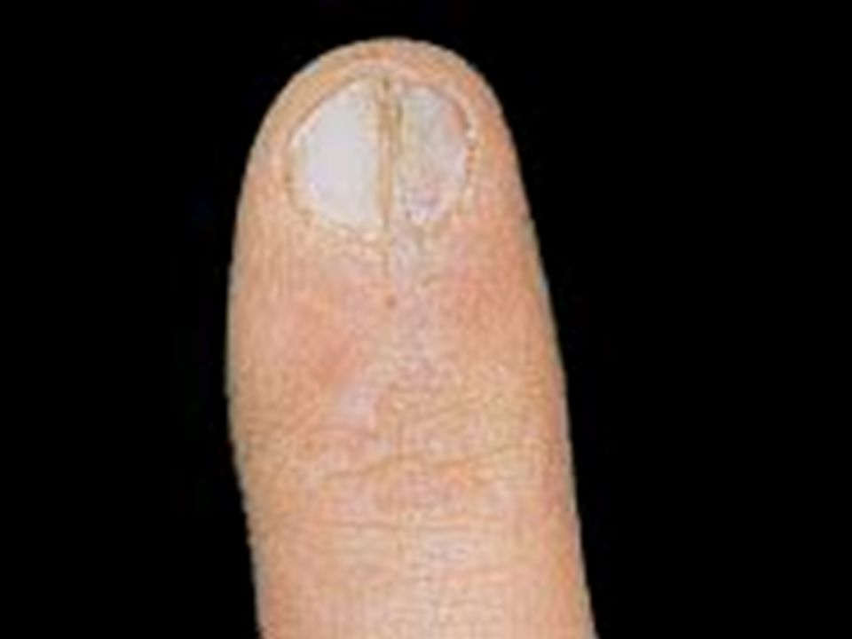 White spots (Leukonychia) Caused by trauma to the nails, over vigorous/excessive manicuring.