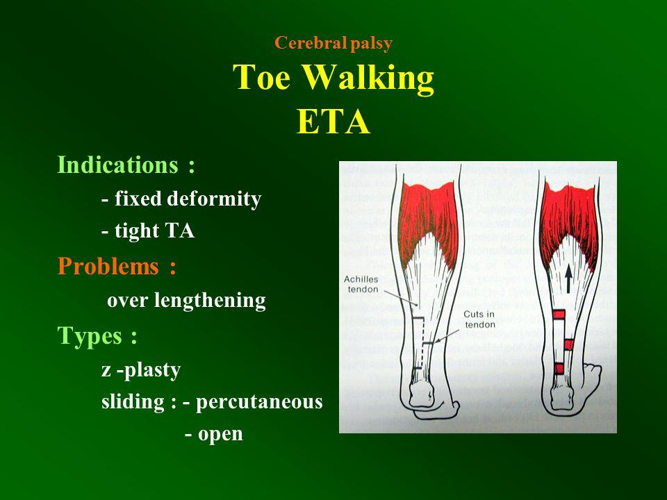 Cerebral palsy Toe Walking ETA Indications : - fixed deformity - tight TA Problems : over lengthening Types : z -plasty sliding : - percutaneous - ope
