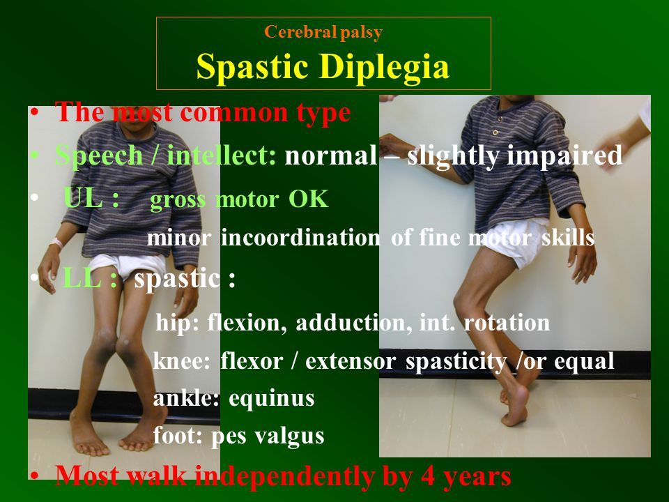 Cerebral palsy Spastic Diplegia The most common type Speech / intellect: normal – slightly impaired UL : gross motor OK minor incoordination of fine m