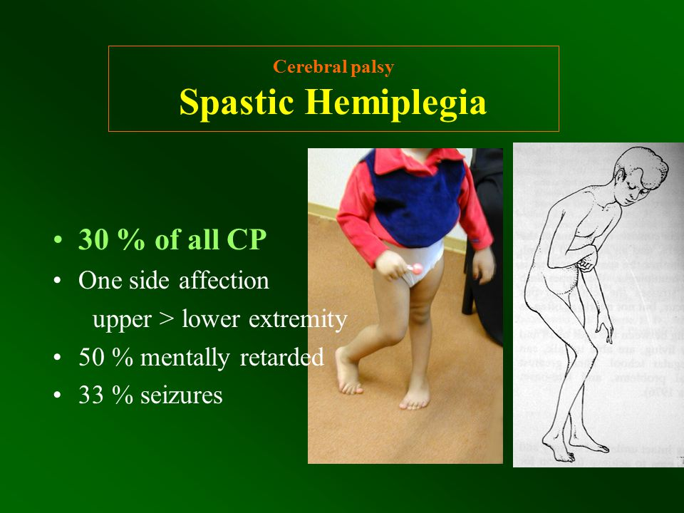 Cerebral palsy Spastic Hemiplegia 30 % of all CP One side affection upper > lower extremity 50 % mentally retarded 33 % seizures